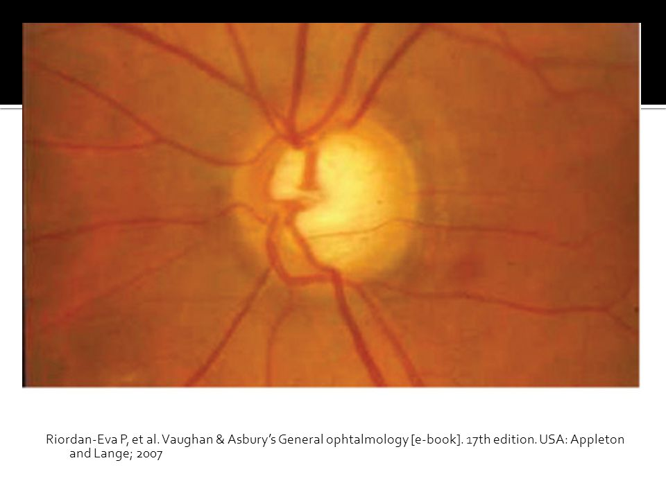 Riordan-Eva P, et al. Vaughan & Asbury's General ophtalmology [e-book]